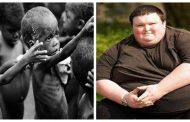 تعرف علي 11معلومة عن حقائق الجوع وسوء التغذية في العالم